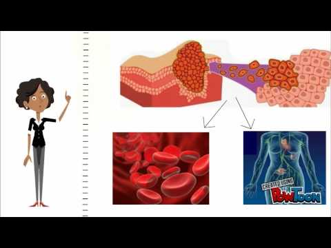 Injecções polyoxidonium para próstata