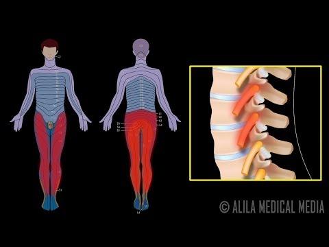 Blokada korzeni nerwowych - procedura