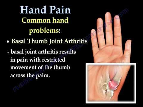 Deformáló akut arthrosis a vállízület kezelésében