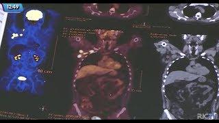 Conversando Sobre o Câncer: linfoma, câncer que afeta o sistema responsável pela imunidade