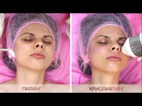 Криопилинг лица в Киеве, видео, Лазерхауз