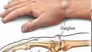 5 Remedios Caseros Para Eliminar Los Quistes Ganglionares | Mejor Salud