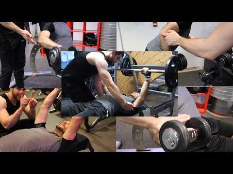 La rupture complète du tendon par le quatrechef du muscle de la cuisse