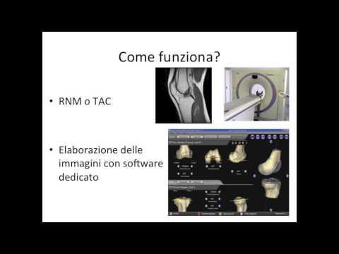 Tipi di movimento articolare degli assi di rotazione