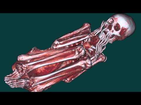 Dass nach Knietotalendoprothese genommen