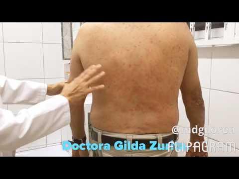 La miel de la eccema y la dermatitis