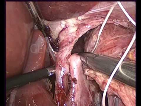 Laparoscopic Collis Gastroplasty For Short Esophagus
