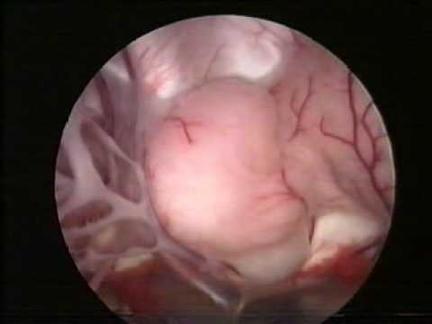 Sampling The Tumor Of Hypothalamus With The Endoscope