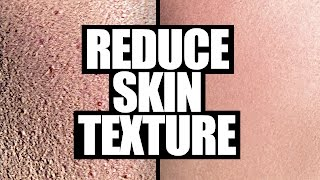 How to Reduce Skin Texture | 5 Easy Steps!