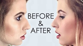 Hannah Leigh - Non-Surgical Nose Job Results! I Flawless Cosmetic