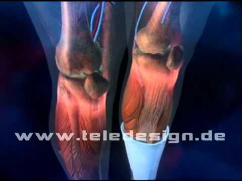 Die roten Flecke im Verfolg Venen der Beine