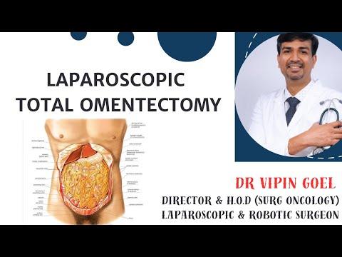Laparoscopic Total Omentectomy