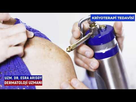 Kriyoterapi Tedavisi - İzmir Ekol Hastanesi