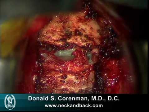 Przednia discektomia szyjna z zespoleniem