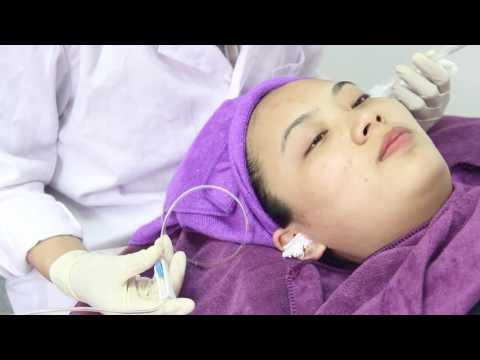 Che sbucciare la pelle secca a psoriasi