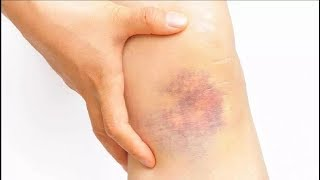 how to get rid of bruises in 1 hour