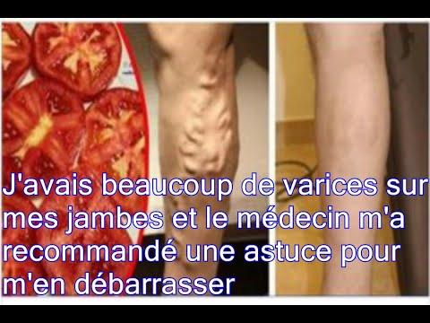 La thrombose non ischémique central des veines de la rétine