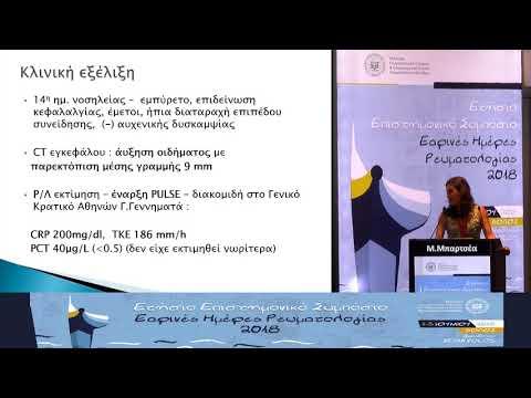 Αικ. Μπαρτσέα - Κοκκιωμάτωση με πολυαγγειϊτιδα - προσβολή ΚΝΣ