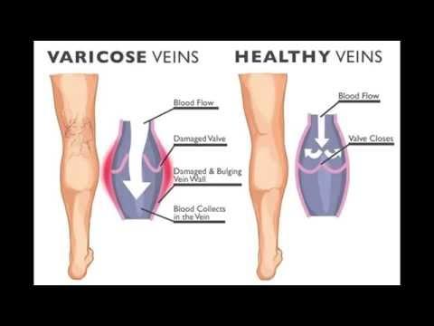 Die Venenvarikose auf den Beinen die Laseroperation der Preis