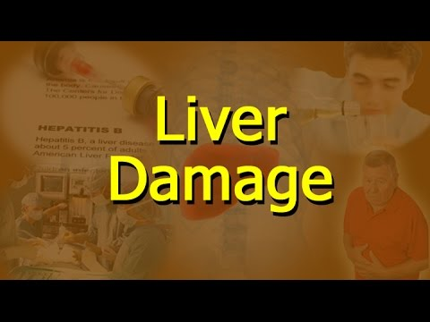Video What Causes Liver Damage?