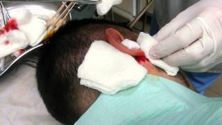 Операция нагноившейся атеромы в области уха