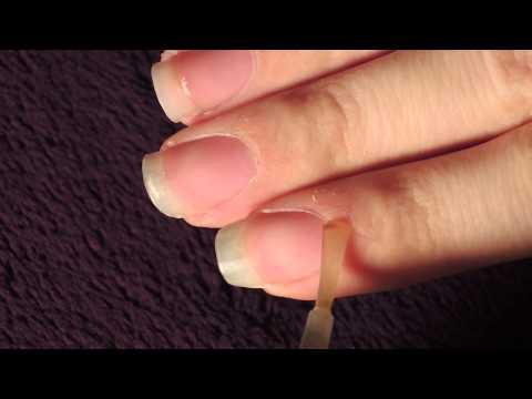 Je souffrais beaucoup du microorganisme végétal des ongles