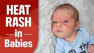 Heat Rash in Babies