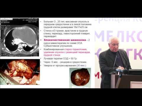 Хирургия опухоли средостения. Место хирургического метода. Ангио- и бронхопластические операции