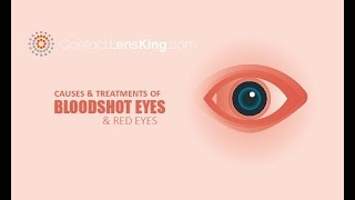 Bloodshot Eyes (Red Eyes) Causes and Treatments