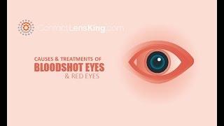 Bloodshot Eyes (Red Eyes) Causes and Treatments