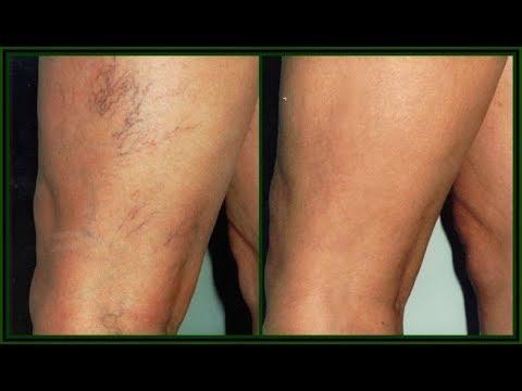 Ce durere în picior în varicoză