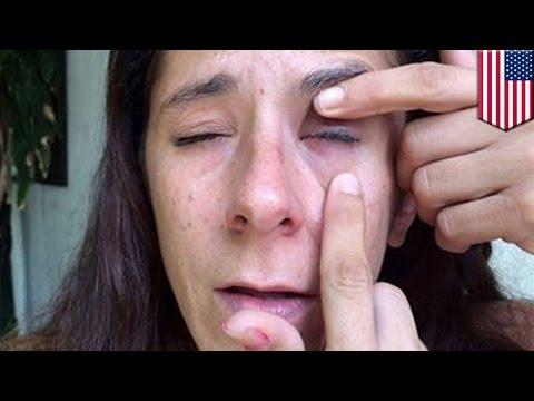Глазная гимнастика астигматизм