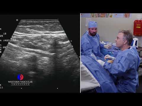 Adaptarea varicoasă după operație