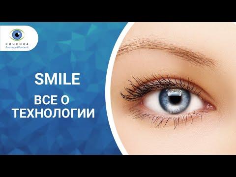 Коррекция зрения ост оптик отзывы