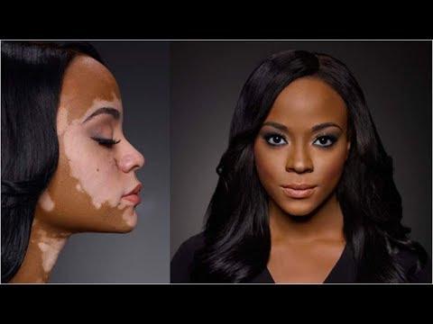 Wovon die Pigmentation auf der Haut bei den Männern des Grundes erscheint