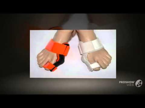Операция на косточках большого пальца в минске