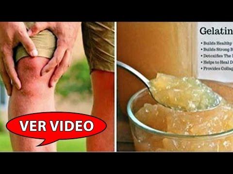 Remedios caseros de tratamiento de la artrosis de cadera