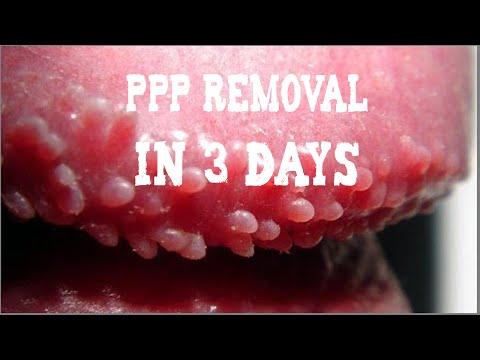 Hirsutoid papilloma nőknél, HPV-fertőzés tünetei és kezelése