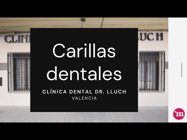 Carillas dentales en Clínica Dental Doctor  Lluch - Clínica Dental Doctor Lluch