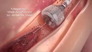 Blood Clot Brain SurgeryVideo In India