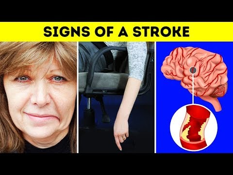 Had I Known The Stroke Symptoms Beforehand, My Mom Would Have NO Speech Problems Now