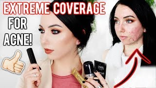 MY TOP FOUNDATIONS FOR ACNE & TEXTURED SKIN! Full/Extreme Coverage Makeup | Fair Skin | Kholo.pk