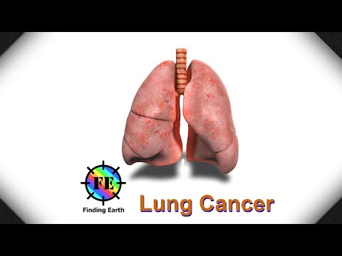 Video Lung Cancer - Symptom, Causes & Diagnosis (Finding Earth)