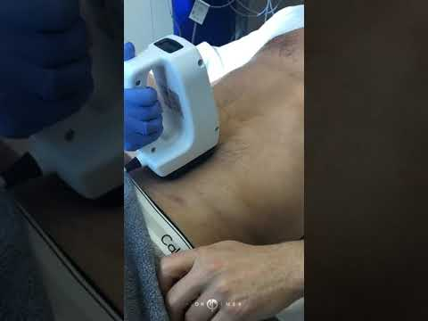 Surgical Body Contouring