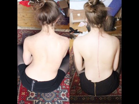 Lfk a idiopathic scoliosis
