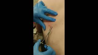 Home cyst removal (mute sound - lots of dramatic gagging)