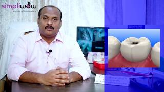 "Dr. Raghavendra, Poorna Dental Clinic, RR Nagar, Bangalore speaks about "" The common Oral Diseases?"
