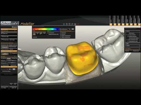 Моделирование каркаса коронки из оксида циркония