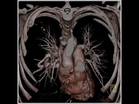 รักษาเส้นเลือดขอดโดยไม่ต้องผ่าตัด Ekaterinburg