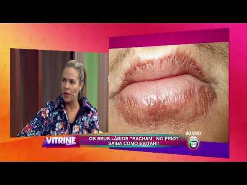 O que é eczema é transferido ou não